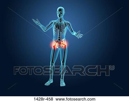 Pictures of x ray view of a human skeleton with hip joint picture x ray view of a human skeleton with hip joint inflammation fotosearch ccuart Choice Image