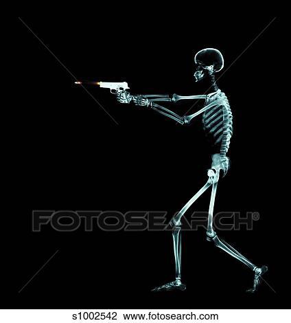 Banco de Imagem - osso, arma, arma de fogo, bala, anatomia s1002542 ...