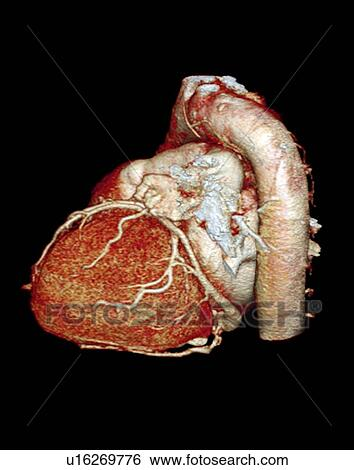 Stock Images of Normal heart, 3D CT scan u16269776 - Search Stock ...