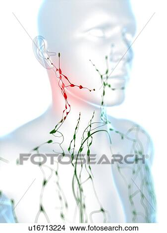 stock photo of swollen lymph nodes in the neck computer