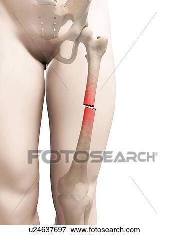 Stock Illustration of Broken thigh bone, illustration u24637697 ...