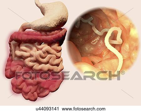 szalagféreg fertőzés