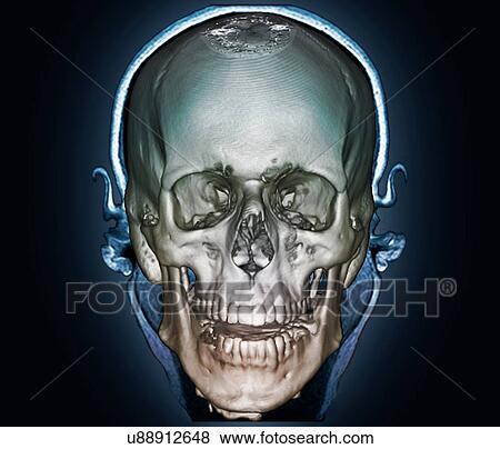 Colección de ilustraciones - cráneo humano, 3d, exploración del ct ...