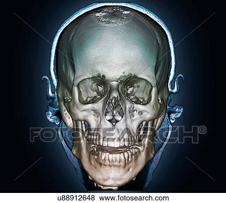 Stock Illustration - menschlicher schädel, 3d, ct scan u88912648 ...