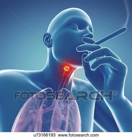 Dibujo - laringe, cáncer, ilustraciones u73166193 - Buscar Clip Art ...