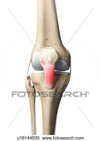 Stock Illustration of Inflamed patellar tendon, artwork u16144035 ...