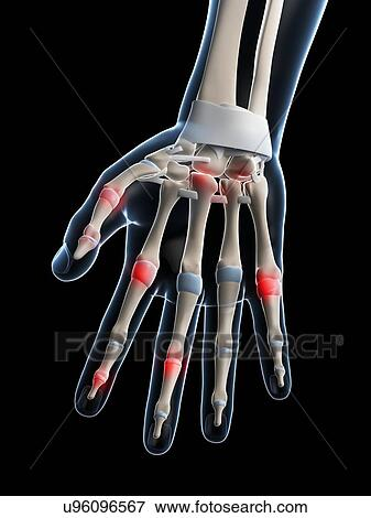 Stock Illustration - menschlicher finger, gelenke, kunstwerk ...