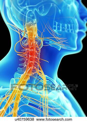 Stock Illustration - menschlicher hals, nerven, kunstwerk u40759638 ...