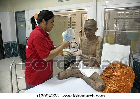 Hiv Aids Pictures Of Patients With Hiv Aids Pictures of aid...