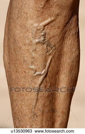 Stock Photo of design body anatomy illness varicose veins legs ...